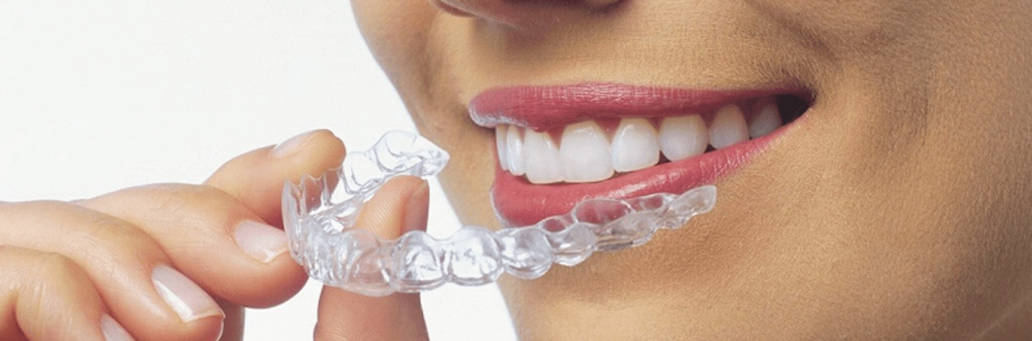 invisalign2 Invisalign and Invisalign Teen in Spanish Fort, AL  - Braces in Spanish Fort, Alabama - McMurphy Orthodontics, Spanish Fort Braces
